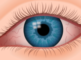 Global Dry Eye Syndrome Market 2019 to 2026