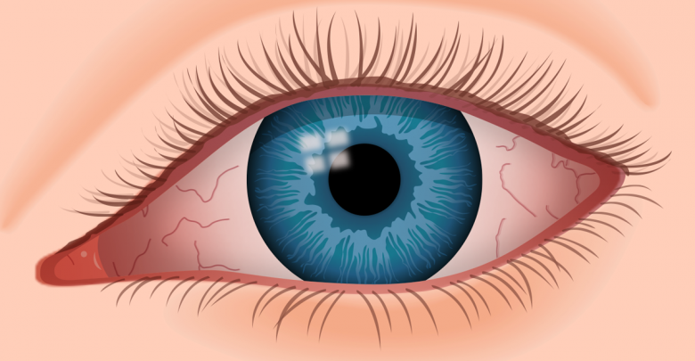 Global Dry Eye Syndrome Market Status Analysis and Forecast 2026 By Prestige Consumer Healthcare, Inc., Akorn, Inc., Sun Pharmaceutical Industries Ltd…