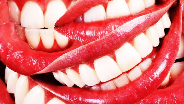 DIY Teeth-Straightening Leaves Dentists and Some Consumers Frowning