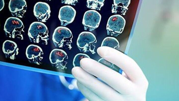 'Personalized' Brain Zaps May Ease Tough-to-Treat Depression – Consumer Health News